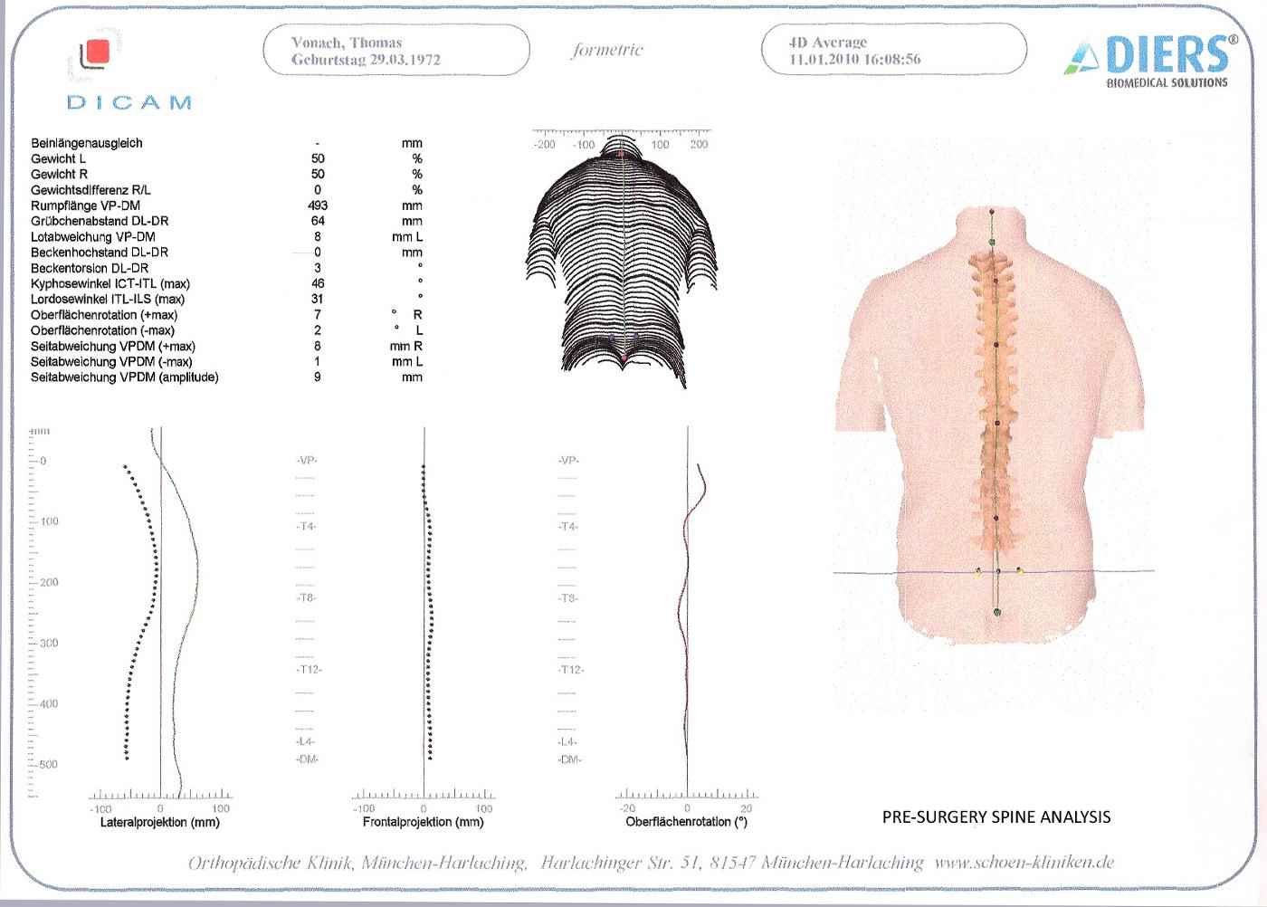 Spine_Details Pre- Surgery_Thomas J. Vonach.jpg